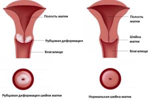 Рубцовая деформация шейки матки: причини виникнення та основні симптоми, способи лікування захворювання