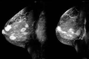 Саркома молочной железы: причини виникнення та основні симптоми, способи лікування захворювання