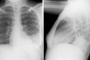 Сегментарная пневмония: причины возникновения и основные симптомы, способы лечения заболевания