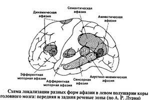 Семантическая афазия: причины возникновения и основные симптомы, способы лечения заболевания
