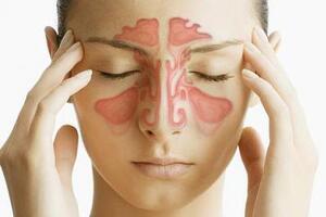 Пансинусит: причини виникнення та основні симптоми, способи лікування захворювання