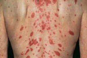 Папулонекротический туберкулез кожи: причини виникнення та основні симптоми, способи лікування захворювання