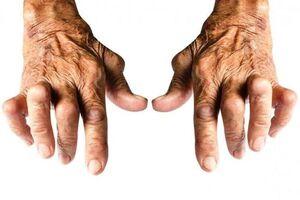 Серонегативные спондилоартриты: причины возникновения и основные симптомы, способы лечения заболевания