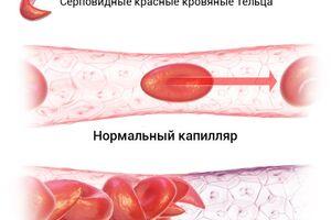 Серповидно-клеточная анемия: причини виникнення та основні симптоми, способи лікування захворювання