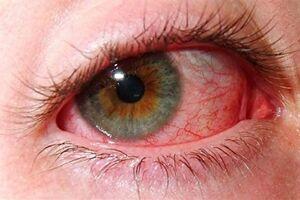 Симпатическая офтальмия: причини виникнення та основні симптоми, способи лікування захворювання