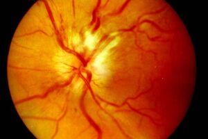Ретробульбарный неврит: причини виникнення та основні симптоми, способи лікування захворювання