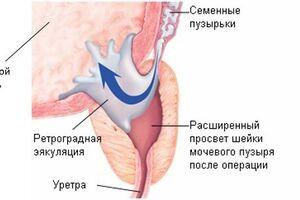 Ретроградная эякуляция: причини виникнення та основні симптоми, способи лікування захворювання