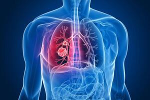 Рецидив рака легкого: причини виникнення та основні симптоми, способи лікування захворювання