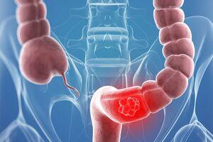 Рецидив рака толстого кишечника: причини виникнення та основні симптоми, способи лікування захворювання