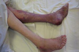 Синдром длительного раздавливания: причини виникнення та основні симптоми, способи лікування захворювання