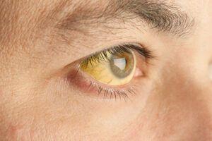 Синдром Жильбера: причини виникнення та основні симптоми, способи лікування захворювання