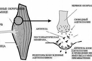 Синдром Ламберта-Итона: причини виникнення та основні симптоми, способи лікування захворювання
