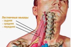 Синдром лестничной мышцы: причини виникнення та основні симптоми, способи лікування захворювання