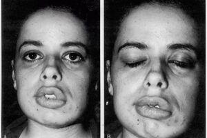 Синдром Мелькерссона-Розенталя: причини виникнення та основні симптоми, способи лікування захворювання