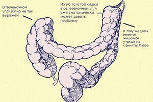 Синдром Пайра: причини виникнення та основні симптоми, способи лікування захворювання