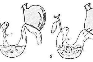 Синдром приводящей петли: причини виникнення та основні симптоми, способи лікування захворювання