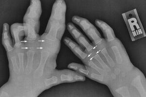 Синдром Протея: причины возникновения и основные симптомы, способы лечения заболевания