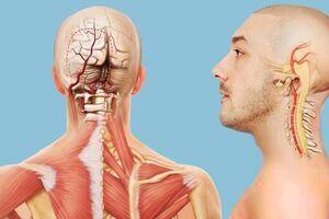 Синдром позвоночной артерии: причини виникнення та основні симптоми, способи лікування захворювання