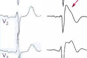 Синдром Бругада: причины возникновения и основные симптомы, способы лечения заболевания