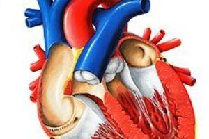Синдром гипоплазии левых отделов сердца: причины возникновения и основные симптомы, способы лечения заболевания