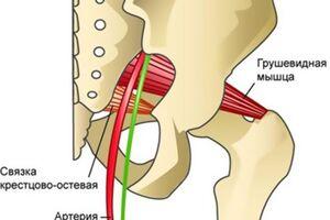 Синдром грушевидной мышцы: причини виникнення та основні симптоми, способи лікування захворювання