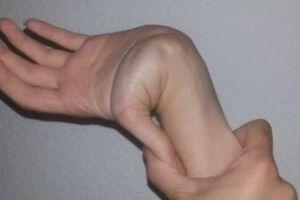 Соединительнотканная дисплазия: причини виникнення та основні симптоми, способи лікування захворювання