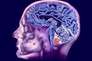 Сосудистый паркинсонизм: причины возникновения и основные симптомы, способы лечения заболевания