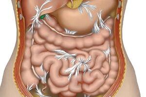 Спаечная болезнь: причины возникновения и основные симптомы, способы лечения заболевания