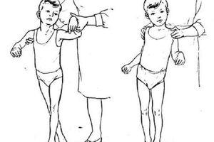 Спастическая диплегия: причини виникнення та основні симптоми, способи лікування захворювання