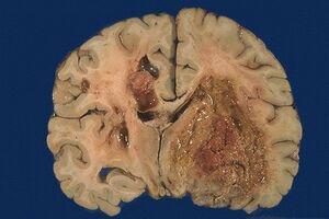Глиобластома: причини виникнення та основні симптоми, способи лікування захворювання