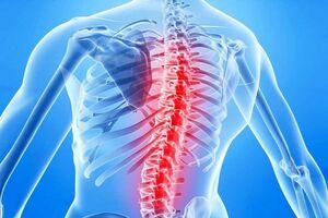 Спинальный арахноидит: причини виникнення та основні симптоми, способи лікування захворювання