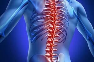Спинальный эпидуральный абсцесс: причини виникнення та основні симптоми, способи лікування захворювання