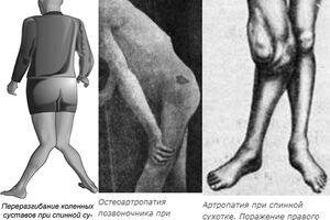 Спинная сухотка: причини виникнення та основні симптоми, способи лікування захворювання