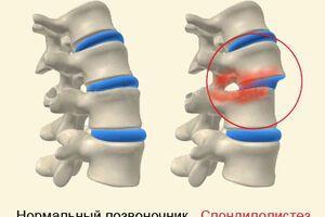 Спондилолистез: причины возникновения и основные симптомы, способы лечения заболевания