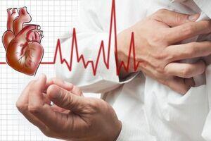 Стабильная стенокардия: причины возникновения и основные симптомы, способы лечения заболевания