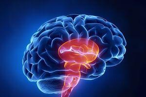 Стволовой инсульт: причини виникнення та основні симптоми, способи лікування захворювання