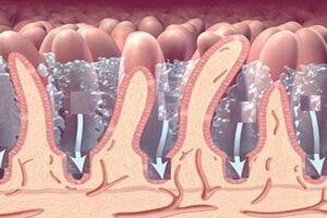 Стеаторея: причины возникновения и основные симптомы, способы лечения заболевания