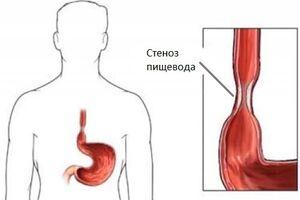 Стеноз пищевода: причины возникновения и основные симптомы, способы лечения заболевания