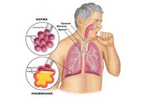 Стрептококковая пневмония: причины возникновения и основные симптомы, способы лечения заболевания