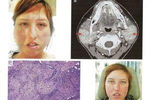 Синдром Хеерфордта: причини виникнення та основні симптоми, способи лікування захворювання