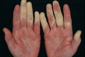 Синдром Шарпа: причины возникновения и основные симптомы, способы лечения заболевания