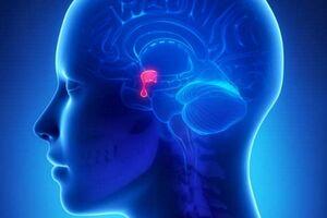 Синдром Шихана: причины возникновения и основные симптомы, способы лечения заболевания