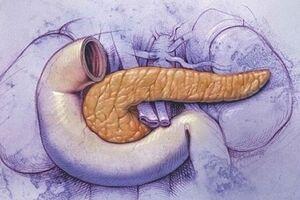 Синдром Швахмана-Даймонда: причини виникнення та основні симптоми, способи лікування захворювання