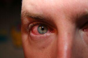 Сифилис глаза и его придатков: причини виникнення та основні симптоми, способи лікування захворювання