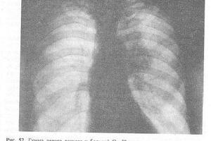 Сифилис лёгких: причини виникнення та основні симптоми, способи лікування захворювання