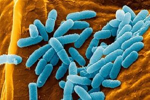 Синегнойная инфекция: причини виникнення та основні симптоми, способи лікування захворювання