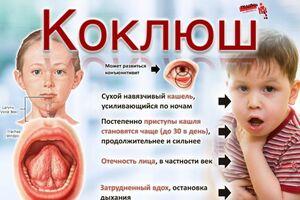 Коклюш: причини виникнення та основні симптоми, способи лікування захворювання