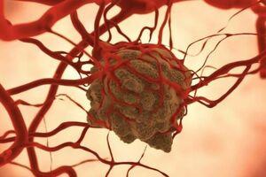 Саркома: причини виникнення та основні симптоми, способи лікування захворювання
