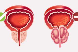 Аденома простаты: причини виникнення та основні симптоми, способи лікування захворювання
