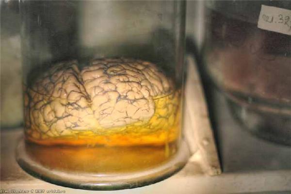 Жесть дня. Покинута лабораторія з вивчення мозку. ФОТО